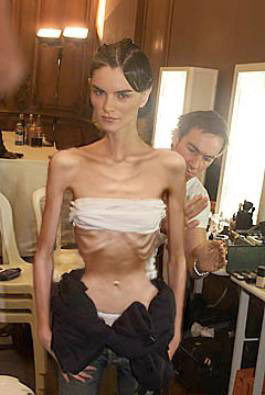 anorexica1