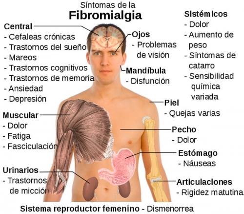 fibromialgia-dolor